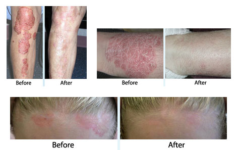 Although there is no cure for psoriasis, there is therapy 2